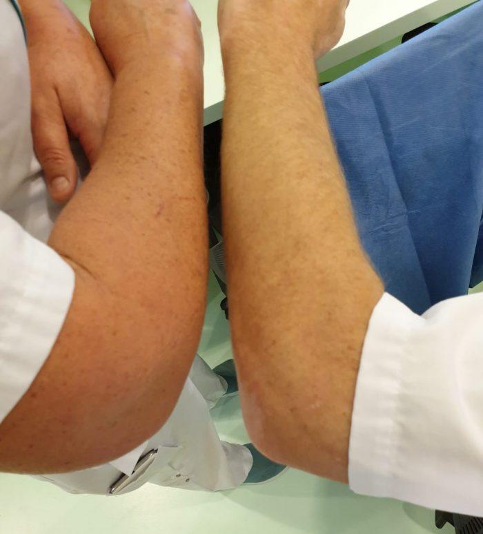 handen uit de mouwen van verpleegkundigen ccu